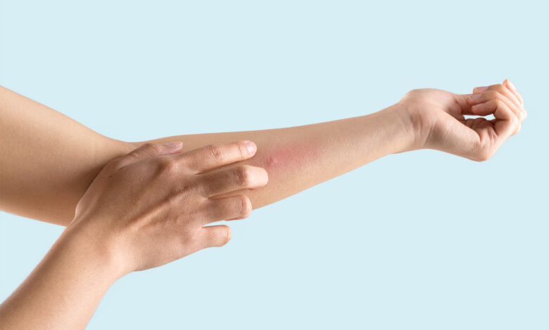 Photo of 4 Tips Preventing Skin Irritation and Itchy Skin